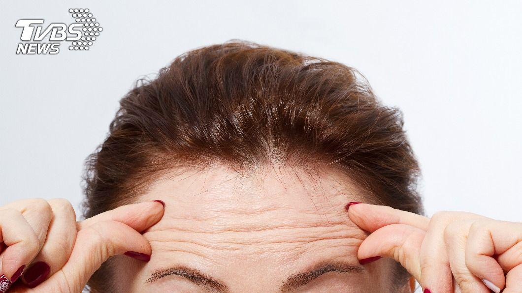 不少人會施打肉毒除皺。(示意圖/shutterstock達志影像) 不讓歲月留下痕跡 醫授臉部肉毒除皺「五三原則」