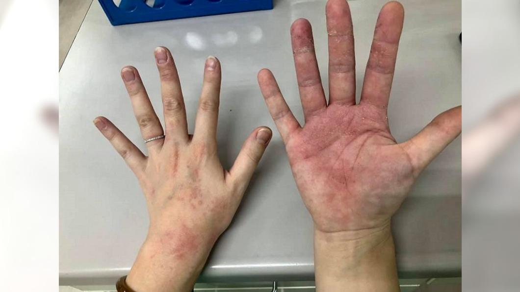 羅姓護理長心疼年輕護理師雙手全破皮。(圖/翻攝自羅姓護理長臉書) 抗疫醫護雙手「破皮起紅疹」 護理長心疼:從沒抱怨過