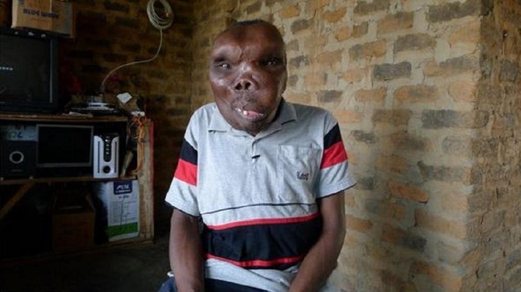 烏干達一名男子因罹患罕見疾病,導致他的臉部扭曲變形。(圖/翻攝自推特) 拒當魯蛇還爆紅 「世界最醜男人」結3次婚生8子