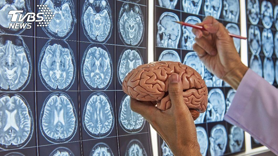 中研院最新研究發現,蛋白不穩定會導致大腦發育異常。(示意圖/shutterstock達志影像) 中研院最新大腦研究 蛋白不穩定恐致智能障礙