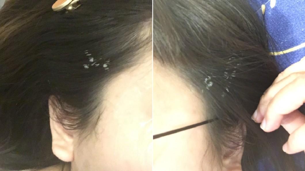 女子慘遭醫師射到頭髮。(合成圖/翻攝自「爆系知識家」) 進廠維修慘遭「雷射漂髮」 女照鏡子崩潰:想剪掉!