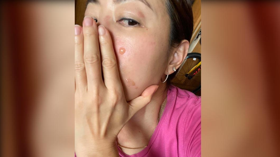 炸螃蟹被熱油噴濺 賈永婕:臉毀了憂留疤
