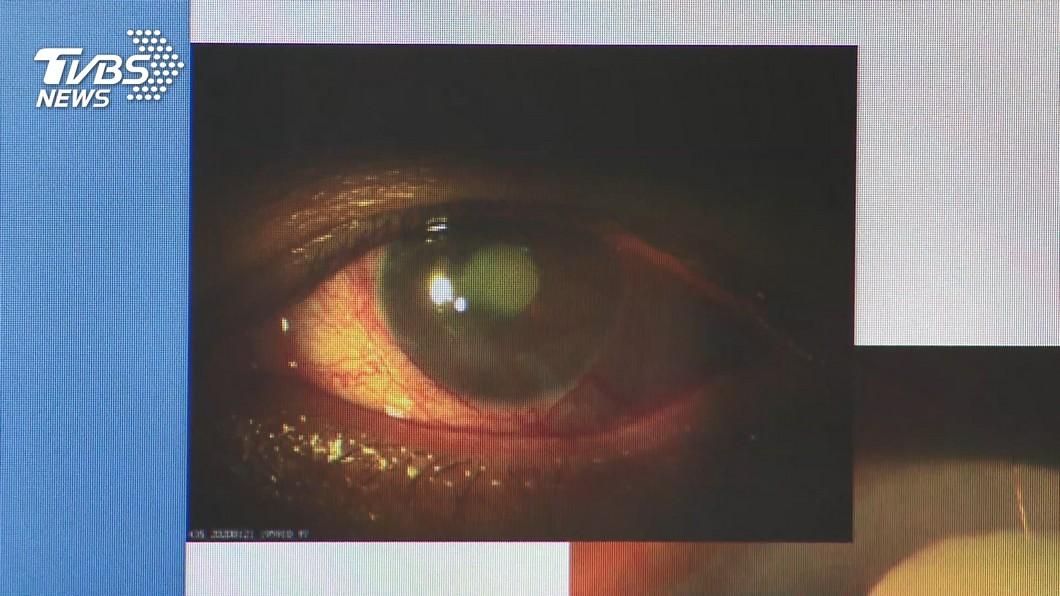 長效散瞳劑恐致白內障?醫給答案