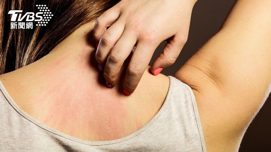 每到換季,皮膚容易產生過敏、發紅等症狀。(示意圖/shutterstock達志影像) 皮膚紅腫發癢是換季惹得禍? 醫師指「它」在搞鬼