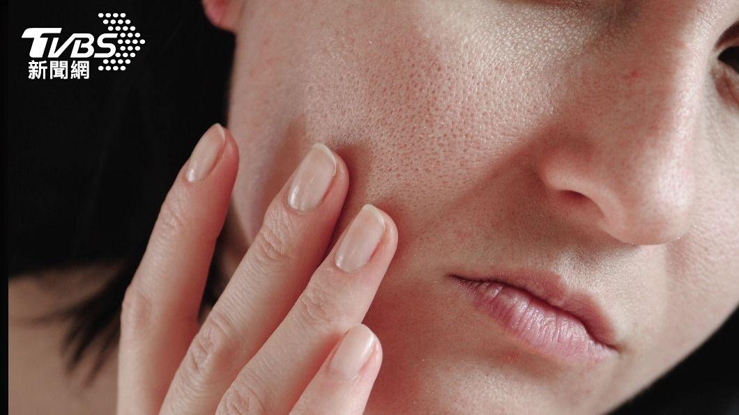 日常習慣沒做好,不知不覺中會養出暗沉肌膚。(示意圖/shutterstock達志影像) 肌膚暗沉讓你瞬間老十歲 5壞習慣養出「蠟黃肌」