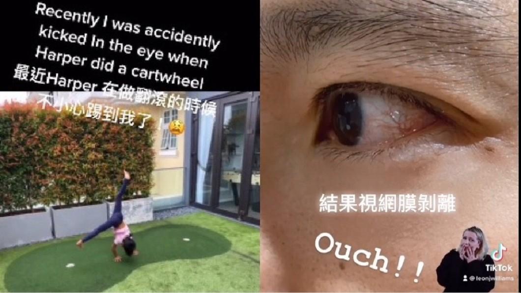 立威廉發抖音稱遭女兒踢到左眼,就醫後發現視網膜剝離。(圖/翻攝自立威廉微博)