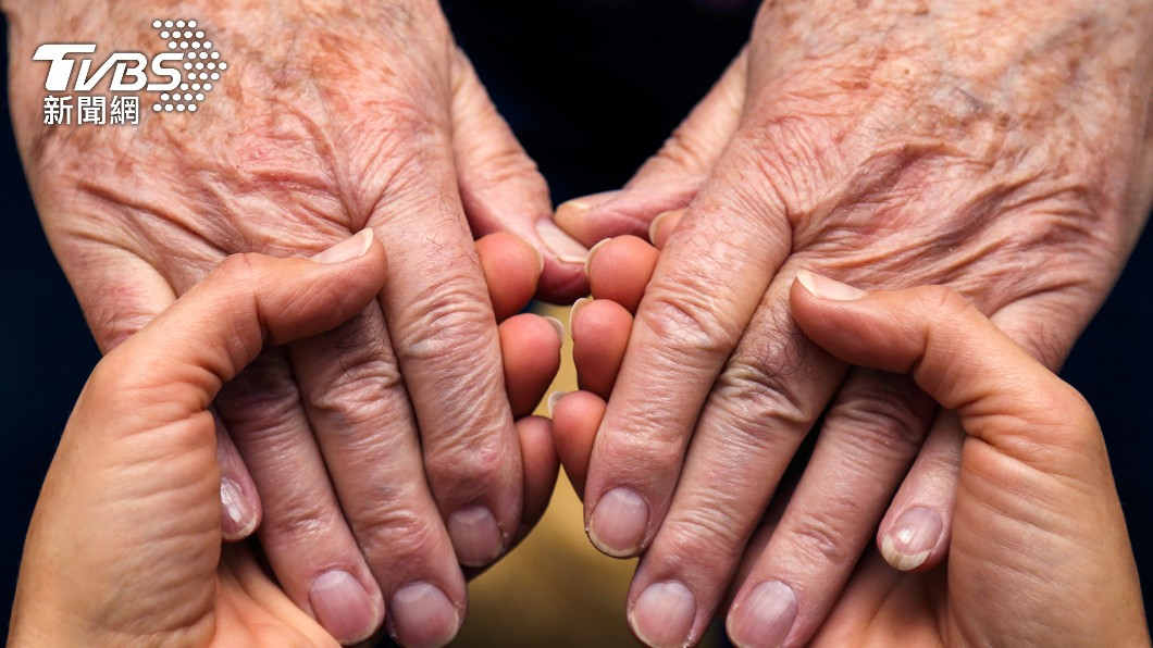 婦人手掌出現隆起、潰瘍出血,被診斷為多發性皮膚癌。(示意圖/shutterstock 達志影像) 慢性砷中毒害慘嬤! 罹皮膚癌「手腳潰瘍」原因曝