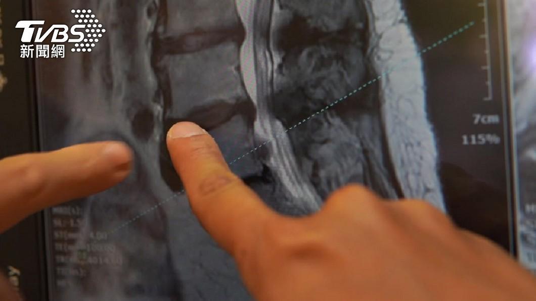 許多人是發生骨折後才發現罹患骨質疏鬆症。(示意圖/TVBS資料畫面) 咖啡加速骨質流失? 醫曝真相:多曬太陽補回來