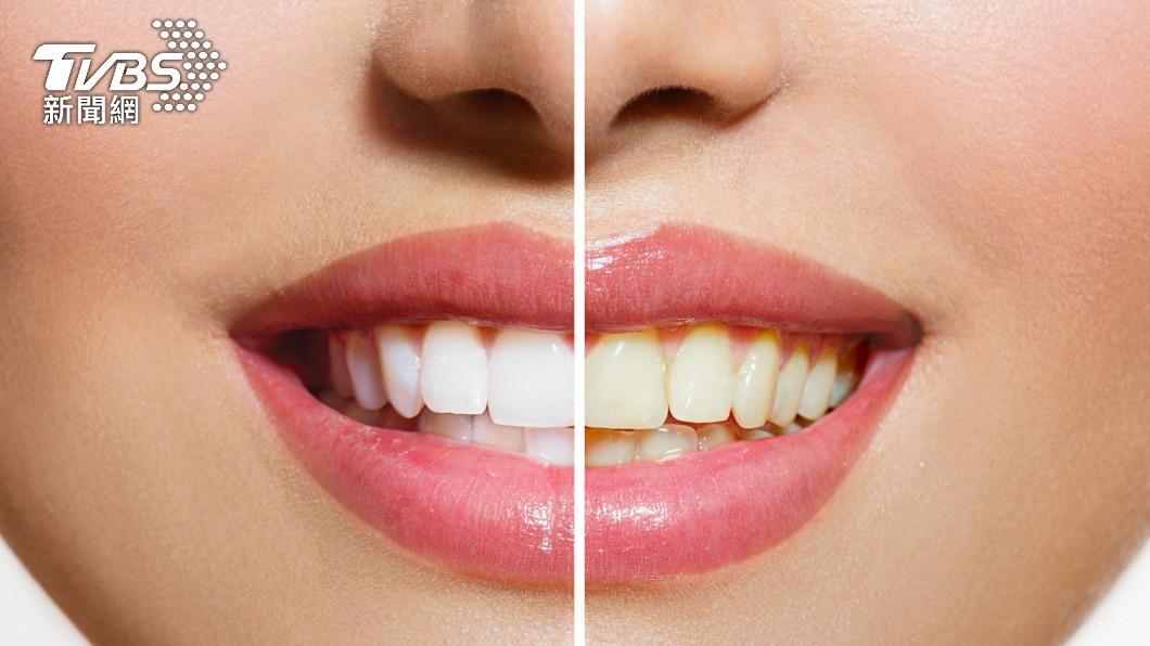 生活裡有很多習慣都會導致牙齒變黃。(示意圖/shutterstock 達志影像) 美白產品愈刷愈髒 6大「黃牙習慣」你中幾項?