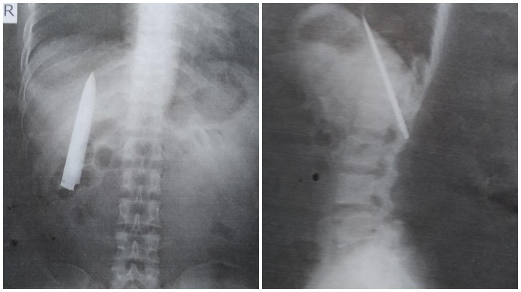 菲律賓一名男子照X光片赫然驚見胸腔埋有一把長約10公分的刀。(合成圖/翻攝自臉書) 「10公分長刀插胸口」14個月 菲男健檢才知道