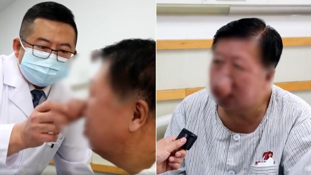 李男每天都要喝8兩白酒,導致生成酒渣鼻。(合成圖/翻攝自看看新聞) 40年豪飲4千公斤白酒 陸男「長出象鼻」喝湯燙到