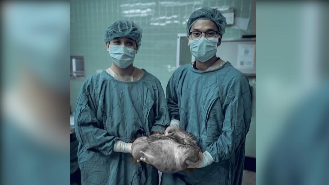 醫師從女童體內切除長達60公分的腫瘤。(圖/翻攝自Nath Kaitaphiwasu臉書) 泰女童體重飆「以為吃太多」 就醫驚:卵巢長60公分腫瘤