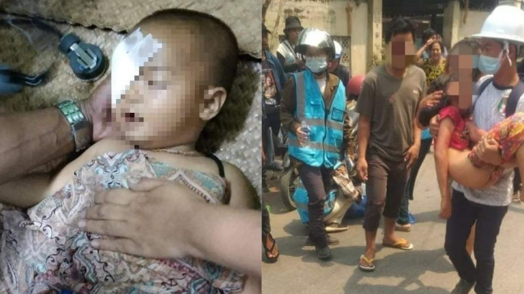 緬甸1歲嬰兒及女童慘遭槍擊。(圖/翻攝自Htet41696845推特) 緬甸政變最血腥一天!軍方殺紅眼「1歲嬰右眼中彈」險喪命
