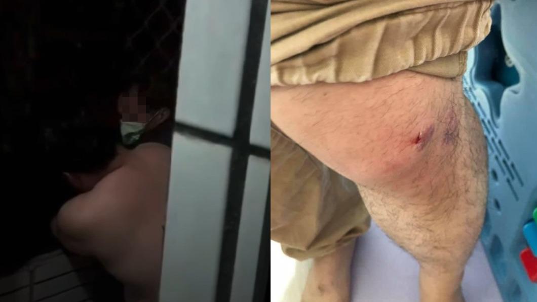 男子與歹徒在陽台扭打造成多處挫傷。(圖/翻攝自「樹林人」) 新北竊賊闖住家遭活逮 朝屋主「噴不明液體」爆扭打