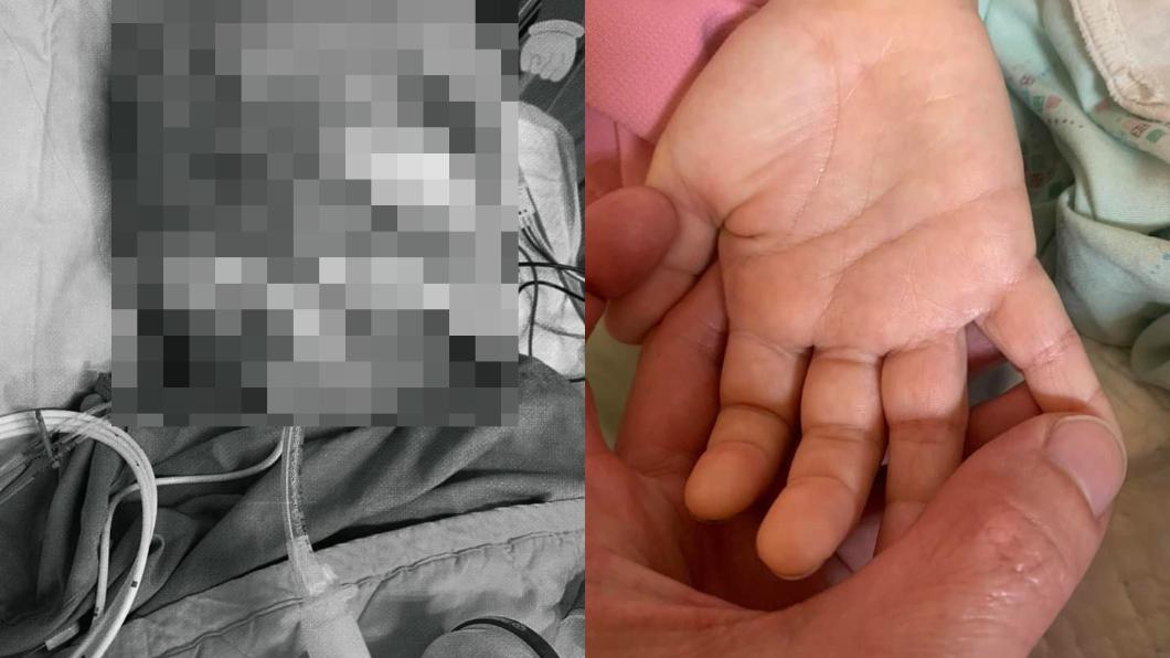 男童仍在昏迷中。(圖/翻攝自男童父親臉書) 柔道童昏迷第21天「移除腦壓檢測器」 醫曝最新狀況