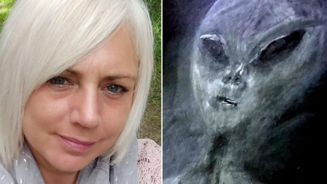 英國一名女子稱被外星人綁架52次。(圖/翻攝自@DailyStarSunday推特) 被外星人綁架52次 女秀瘀傷照揭「親密接觸」過程