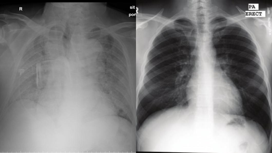醫師分享左邊為染疫老翁的肺部,右邊則是正常肺部。(圖/翻攝自Shih Yu Ko臉書) 確診翁咳1天「整片肺發白」 醫嘆:24小時內身亡