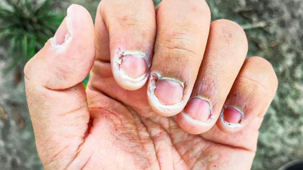潘孟安分享清潔人員的手部照片,讓上萬網友超心疼。(圖/翻攝自潘孟安臉書) 消毒比採檢久!清潔員手洗到龜裂 萬人心疼:能感受到痛