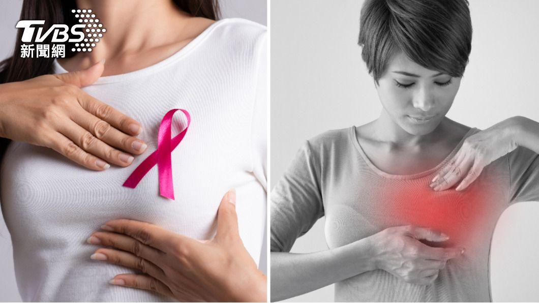 胸部疼痛不一定是乳癌前兆。(示意圖/Shutterstock達志影像) 先別緊張!胸部疼痛未必是乳癌 6前兆提升自我判斷力