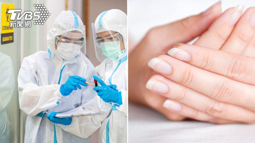新冠病毒恐導致隱形缺氧,專家建議平時可從指甲顏色判斷血氧濃度。(示意圖/Shutterstock達志影像) 當心「快樂缺氧」猝死 醫教從指甲顏色、呼吸次數看警訊