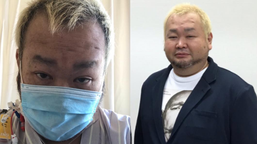 日本喜劇演員高野二郎確診新冠肺炎後昏迷8天。(圖/翻攝自tokyodynamite推特) 日男星確診新冠肺炎昏迷8天 「手腳肌肉萎縮」站立困難