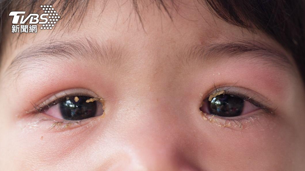 腎病症後群易出現眼皮、四隻水腫等情形。(示意圖/shutterstock達志影像) 孩子眼睛浮腫別輕忽!4症狀中2項恐「這疾病」找上門