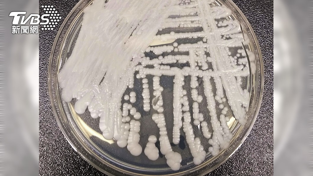 美國CDC針對耳念珠菌做研究。(圖/達志影像美聯社) 美國爆發超級真菌!證實「無藥可治」已3死 傳染恐擴大