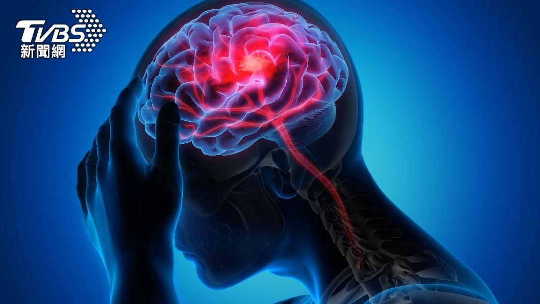 新冠肺炎病毒恐攻擊腦血管,造成神經長期後遺症。(示意圖/shutterstock達志影像) 新冠病毒會攻擊「腦血管」!當心神經長期後遺症