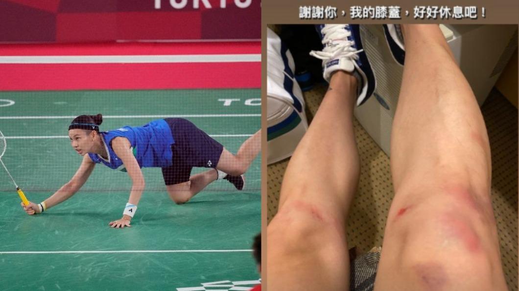 戴資穎膝蓋全是傷。(圖/達志影像美聯社、翻攝自戴資穎IG) 「或許不再參加奧運」 戴資穎拚到雙膝全傷:好好休息吧