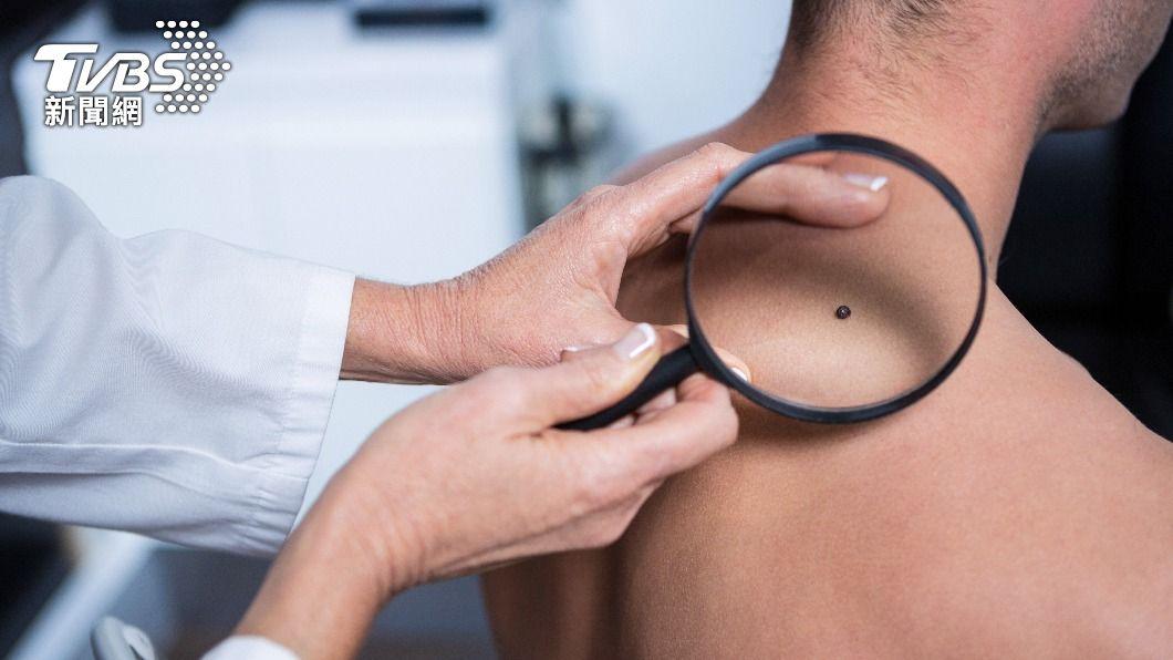 身上如出現不明黑痣可以前往醫院檢查。(示意圖/shutterstock達志影像) 身上「黑痣冒血」沒在意 27歲女被皮膚癌奪命
