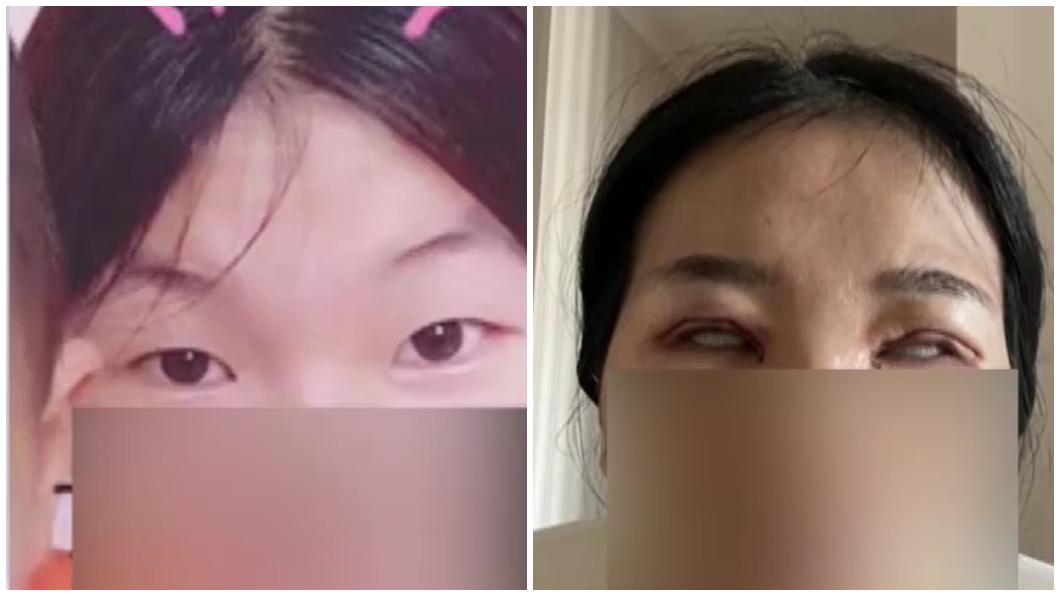 大陸重慶一名單眼皮女子去割雙眼皮後整個情況變超慘。(合成圖/翻攝自重慶廣電微博) 人妻愛美割雙眼皮 術後變「怪物」尪嚇到提離婚
