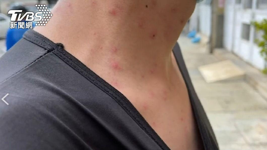 許多當地人全身冒紅疹奇癢無比。(圖/TVBS) 澎湖急查奇癢紅疹!驚見「這東西」現身 初判結果出爐