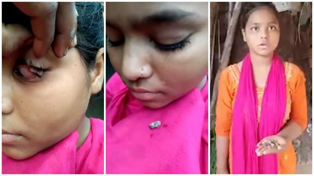 印度一名少女一哭泣流下的不是眼淚而是石頭。(圖/翻攝自THE MIRROR TIME YouTube) 15歲少女眼紅腫「流眼淚掉石頭」 醫一看搖頭:沒法醫