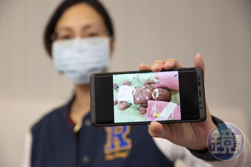 按時產檢新生兒卻只活3天 夫妻控醫院疏失