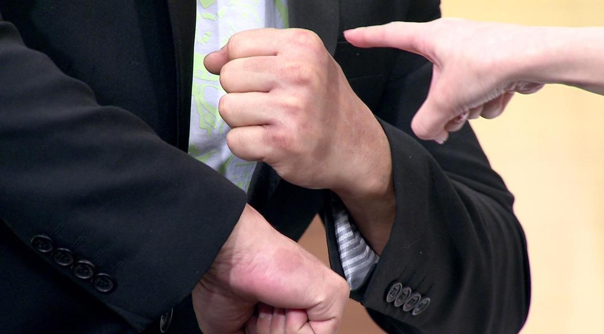 嚴重時甚至曾經水泡佈滿手掌,陳為民秀出手上數十個濕毒導致的疤痕。圖/年代