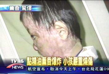 點精油爆炸 小孩嚴重燒傷