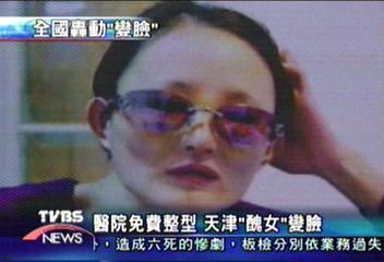 醫院免費整型 天津「醜女」變臉