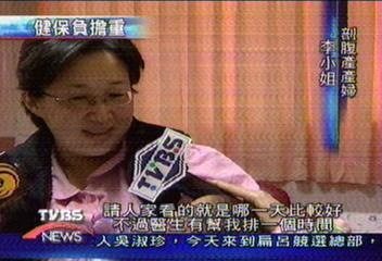 台灣剖腹產33% 高居世界第三