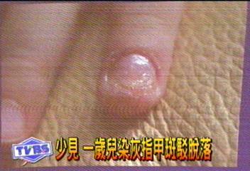少見 1歲兒染灰指甲斑駁脫落