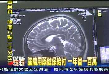 腦瘤用藥健保給付 一年省一百萬