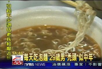 每天吃泡麵 29歲男「禿頭」似中年