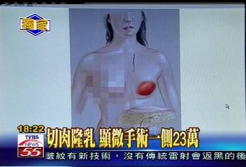 〈獨家〉切肉隆乳 顯微手術一側23萬