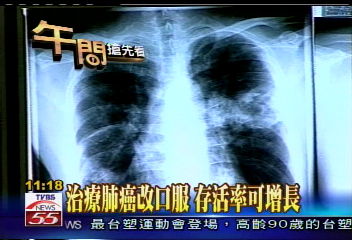治療肺癌改口服 存活率可增長