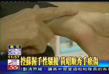 控蘇握手性騷擾 黃昭順秀手瘀傷