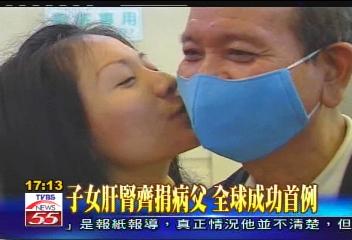 子女肝腎齊捐病父 全球成功首例