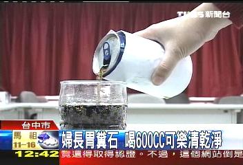 婦長胃糞石 喝600C.C.可樂清乾淨