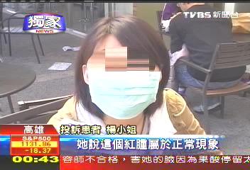 〈獨家〉果酸換膚臉灼傷 女子控診所疏失