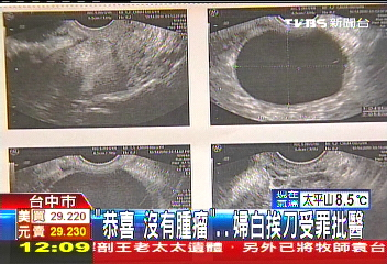 「恭喜沒有腫瘤」 婦白挨刀受罪批醫