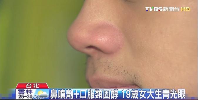 鼻噴劑+口服類固醇 19歲女大生青光眼