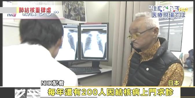 FOCUS/集體感染新現象 日國民病:結核病致命